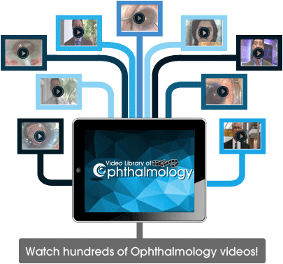 Watch hundreds of Ophthalmology videos!